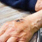 化膿止めOTC塗り薬の選び方・火傷ととびひでどう違う?